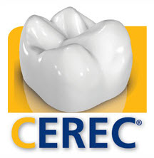 Same Day Crowns - CEREC